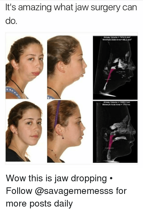 "Memes, Wow, and Amazing: It's amazing what jaw surgery can  do.  Arway Volume 74146mm  Maiman, Axial Are""40.2 m㎡  Arway Volume & 11833 3  Mnimum Axial Area-1769 m Wow this is jaw dropping • ➫➫ Follow @savagememesss for more posts daily"
