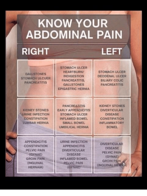 KNOW YOUR ABDOMINAL PAIN RIGHT LEFT STOMACH ULCER HEARTBURN