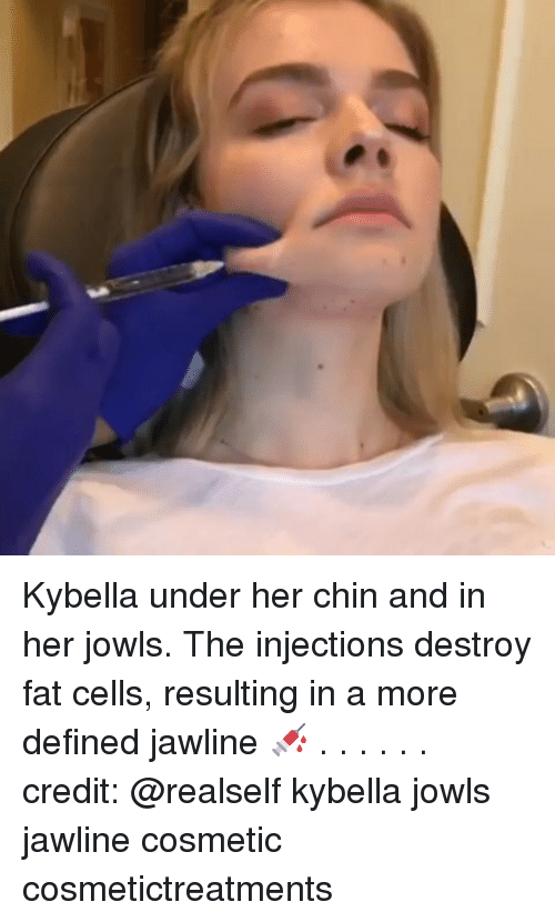 Kybella Under Her Chin and in Her Jowls the Injections Destroy Fat