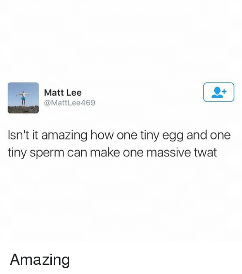 Memes, Amazing, and 🤖: Matt Lee  @MattLee469  Isn't it amazing how one tiny egg and one  tiny sperm can make one massive twat Amazing