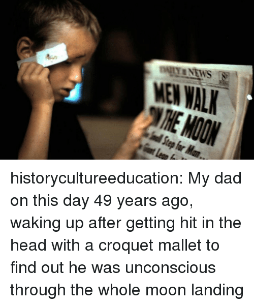 Dad, Head, and Target: MEN WAL historycultureeducation:  My dad on this day 49 years ago, waking up after getting hit in the head with a croquet mallet to find out he was unconscious through the whole moon landing