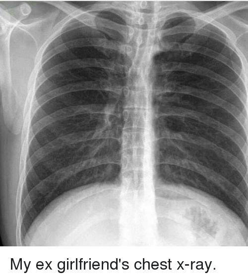 Funny Girlfriends And Ray My Ex Girlfriends Chest X Ray