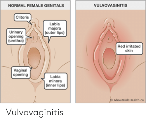 NORMAL FEMALE GENITALS VULVOVAGINITIS Clitoris Labia Majora Outer ...