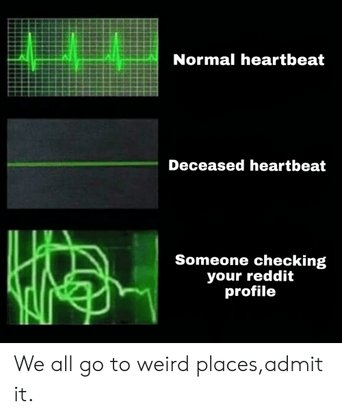 Normal Heartbeat Deceased Heartbeat Someone Checking Your