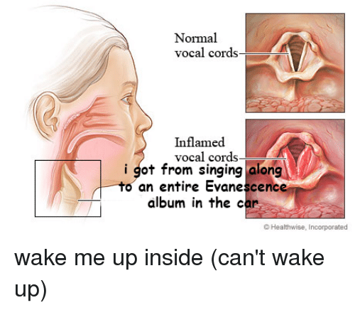 Normal Vocal Cords Inflamed Vocal Cords- I Got From Singing Alon -To ...