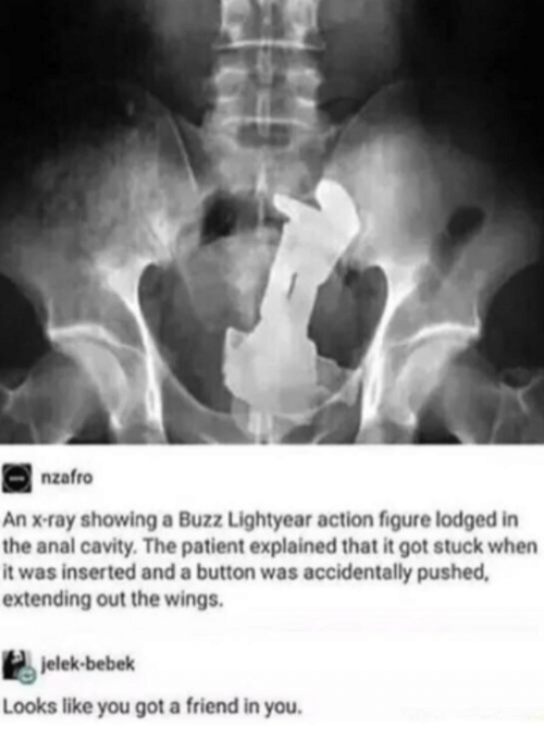 Anal, Patient, and Wings: nzafro  An x-ray showing a Buzz Lightyear action figure lodged in  the anal cavity. The patient explained that it got stuck when  it was inserted and a button was accidentally pushed  extending out the wings.  jelek-bebek  Looks like you got a friend in you.