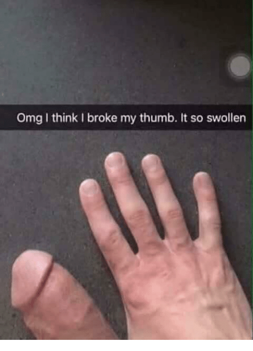 how to tell if you broke your thumb