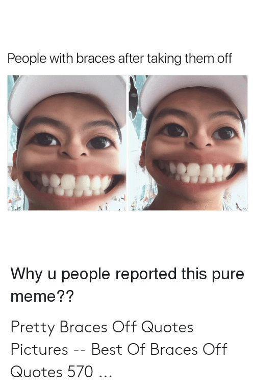 Meme, Best, and Braces: People with braces after taking them off  Why u people reported this pure  meme?? Pretty Braces Off Quotes Pictures -- Best Of Braces Off Quotes 570 ...