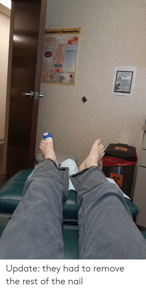 Peripheral Neuropathy Symptoms May Include Pain Burning