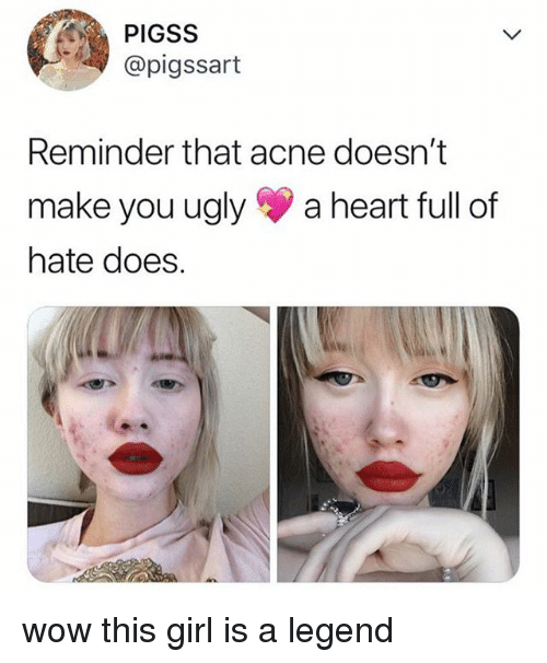 Ugly, Wow, and Girl: PIGSS  @pigssart  Reminder that acne doesn't  make you ugly a heart full of  hate does. wow this girl is a legend
