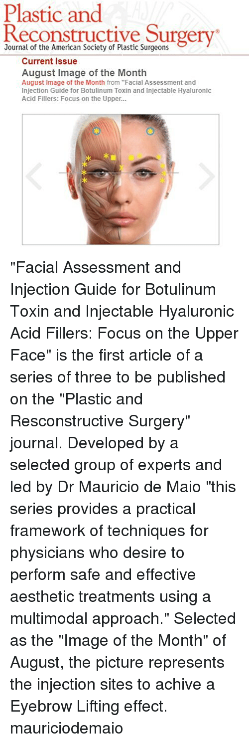 Download A Practical Guide to Botulinum Toxin Procedures ...