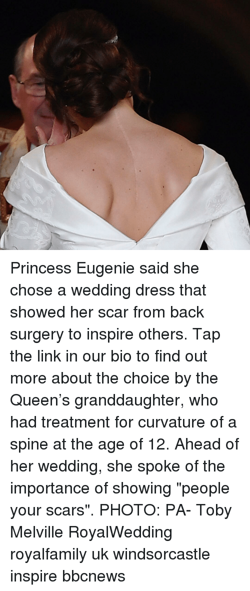 "Memes, Queen, and Dress: Princess Eugenie said she chose a wedding dress that showed her scar from back surgery to inspire others. Tap the link in our bio to find out more about the choice by the Queen's granddaughter, who had treatment for curvature of a spine at the age of 12. Ahead of her wedding, she spoke of the importance of showing ""people your scars"". PHOTO: PA- Toby Melville RoyalWedding royalfamily uk windsorcastle inspire bbcnews"