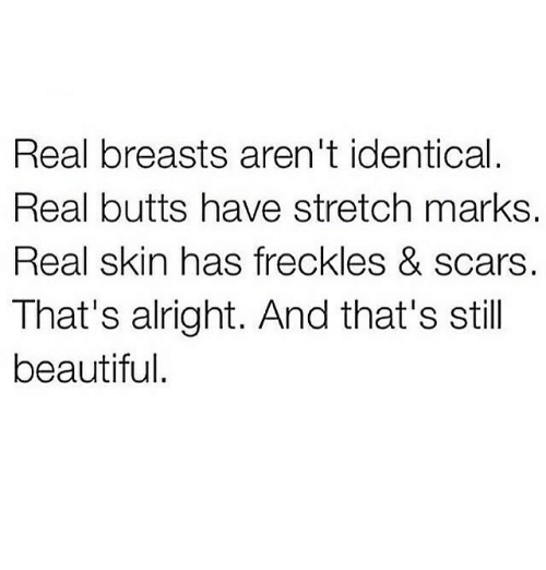 Beautiful, Alright, and Skin: Real breasts aren't identical  Real butts have stretch marks  Real skin has freckles & scars.  That's alright. And that's stil  beautiful.
