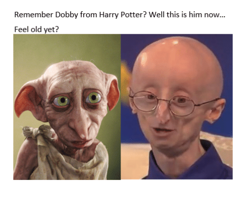 remember dobby from harry potter well this is him now 15870501 remember dobby from harry potter? well this is him now feel old