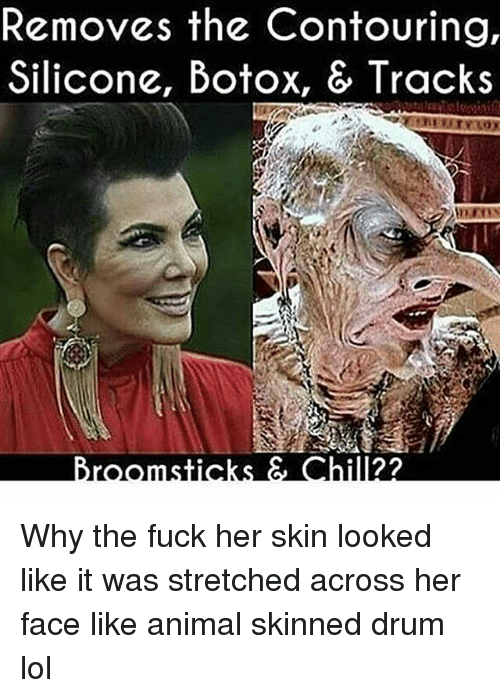 Lol, Memes, and Animal: Removes the Contouring,  Silicone, Botox, & Tracks  hill2? Why the fuck her skin looked like it was stretched across her face like animal skinned drum lol