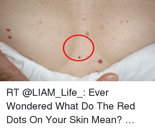 What Does Rt Mean >> Rt Ever Wondered What Do The Red Dots On Your Skin Mean Life