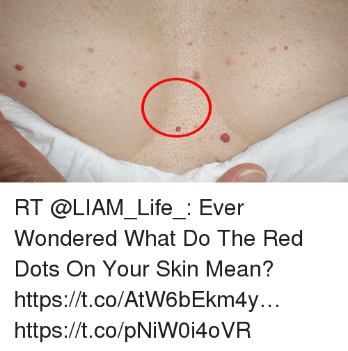What Does Rt Mean >> Rt Ever Wondered What Do The Red Dots On Your Skin Mean