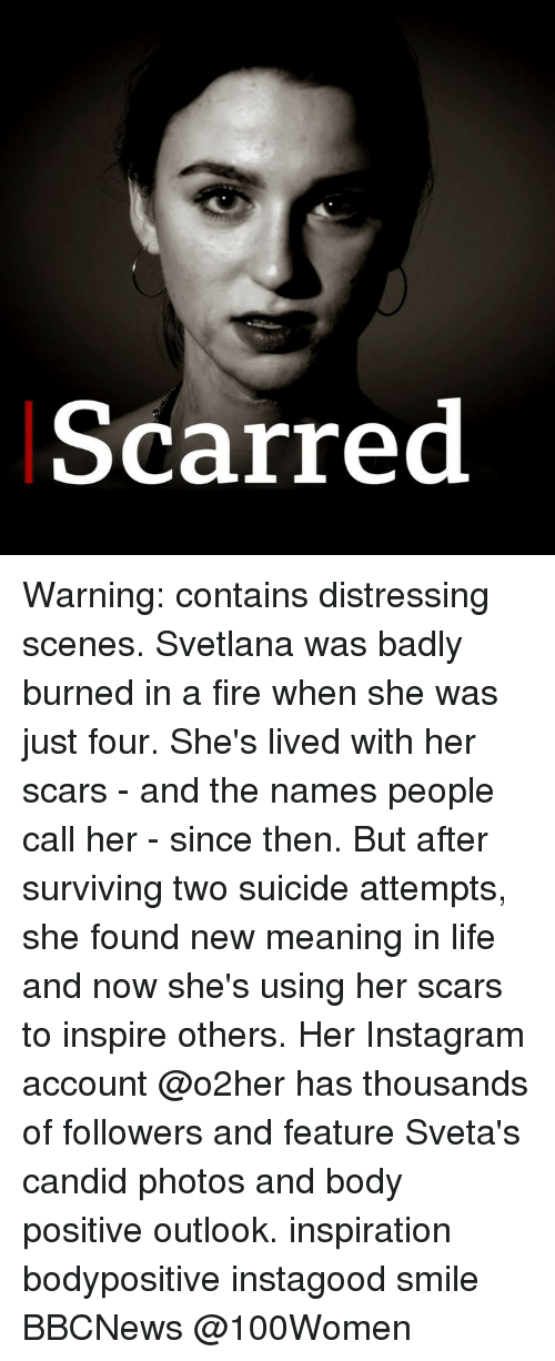 Fire, Instagram, and Life: Scarred Warning: contains distressing scenes. Svetlana was badly burned in a fire when she was just four. She's lived with her scars - and the names people call her - since then. But after surviving two suicide attempts, she found new meaning in life and now she's using her scars to inspire others. Her Instagram account @o2her has thousands of followers and feature Sveta's candid photos and body positive outlook. inspiration bodypositive instagood smile BBCNews @100Women