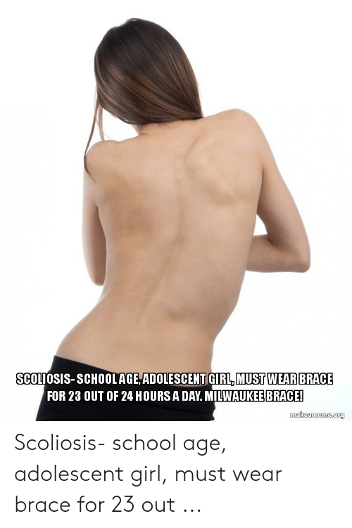 SCOLIOSIS-SCHOOLAGEADOLESCENT GIRL MUST WEARBRACE FOR 23 OUT