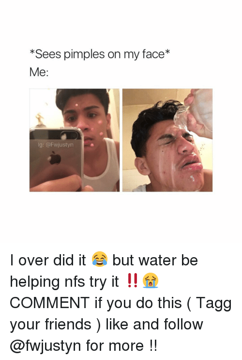 Memes, 🤖, and Nfs: *Sees pimples on my face*  Me  lg: @FWjustyn I over did it 😂 but water be helping nfs try it ‼️😭 COMMENT if you do this ( Tagg your friends ) like and follow @fwjustyn for more !!