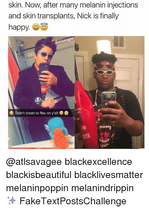 Black Lives Matter, Flexing, and Memes: skin. Now, after many melanin injections  and skin transplants, Nick is finally  happy  eatsavagee  Didn't mean to flex on y'all @atlsavagee blackexcellence blackisbeautiful blacklivesmatter melaninpoppin melanindrippin ✨ FakeTextPostsChallenge