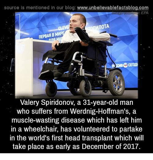 Head, Memes, and Old Man: source ls mentioned In our blog  www.unbelievablefactsblog.com  EPA  MnoTA  ITEPBAAB MMP  Valery Spiridonov, a 31-year-old man  who suffers from Werdnig-Hoffman's, a  muscle-wasting disease which has left him  in a wheelchair, has volunteered to partake  in the world's first head transplant which will  take place as early as December of 2017.