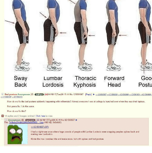 4chan, Bad, and Click: Sway  Lumbar  Thoracic  Forward  Gool  Back  Lordosis  Kyphosis  Head  Postu  Bad posture Anonymous (ID  >-12 1593567 121593600 121593898 121591951 121591989  121593197 121593241  How do we fix the bad posture epidemic happening with millennials? Almost everyone l see at college is hunched over when they use their laptops  Not gonna lie, l do the same.  How do we fix this?  14 replies and 2 images omitted. Click here to view.  Anonymous (ID: O  04/181 Tue)00:30:11 No. 121593567  File: 7e9bda254db628f6e9ede8985  jpg (186 KB, 640x640)  121591667 (OP)  l had a nightmare once where huge crowds of people with Lumbar Lordosis were snapping peoples spines back and  making new Lordosis's  Kinda like how zombies bite and make more, but with spines and bad posture.