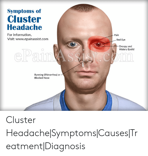Symptoms of Cluster Headache for Information Visit