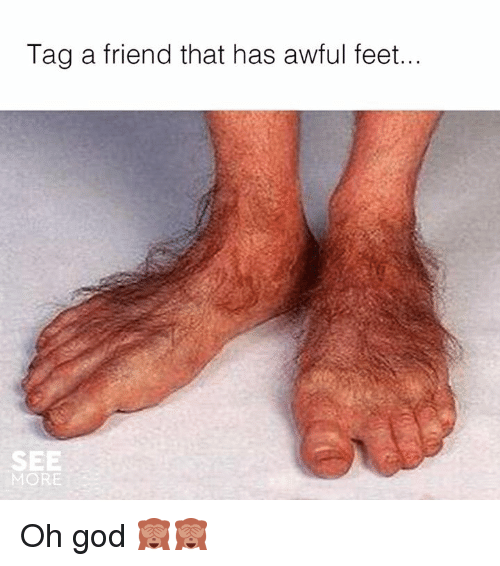 Tag A Friend That Has Awful Feet See More Oh God   Dank -7352