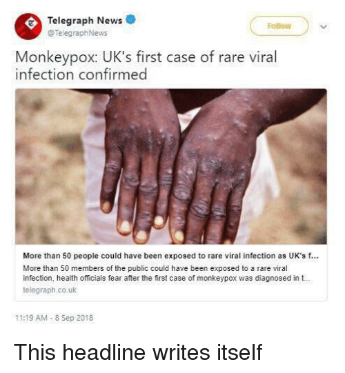 Singapore Reports First Case Of Rare Monkeypox Virus: 25+ Best Memes About Viral Infection