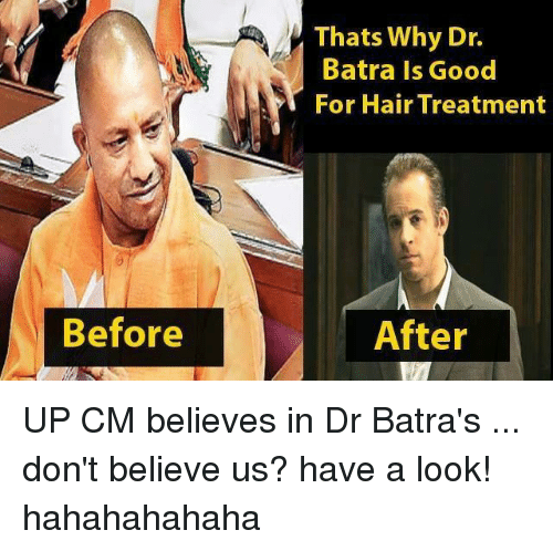 thats why dr batra is good for hair treatment before 26986754 ✅ 25 best memes about up cm up cm memes,Asaram Meme