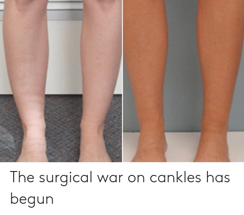 The Surgical War on Cankles Has Begun | War Meme on ME ME