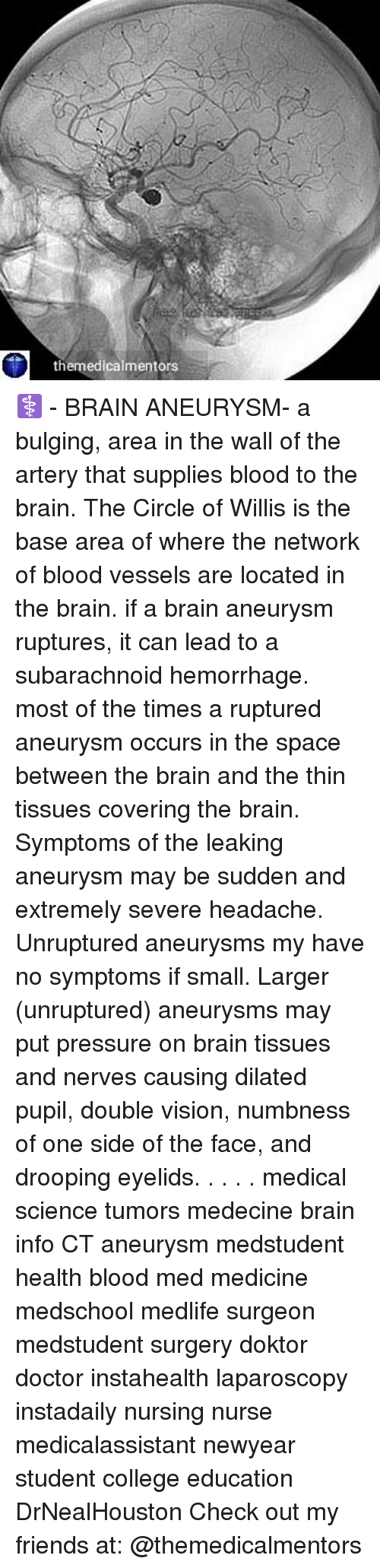 a description of brain aneurysm a bulge formed by the ballooning of the wall of an artery or a vein (brain aneurysm) varicose aneurysm one formed by rupture of an aneurysm into a vein saccular aneurysm sac-like ballooning of an artery wall aneurysm.