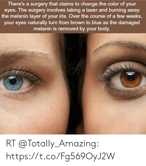 There's a Surgery That Claims to Change the Color of Your