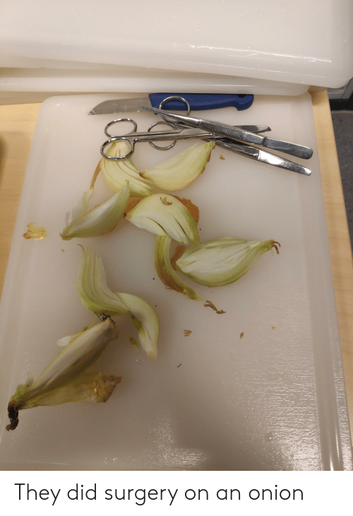 They Did Surgery on an Onion | Reddit Meme on ME ME