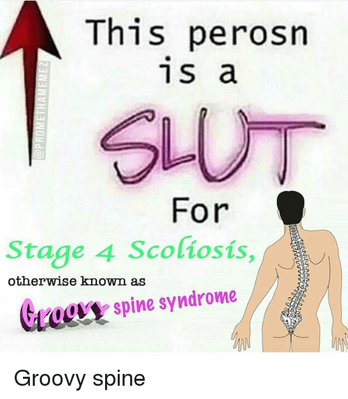 This Perosn 1 S a for Stage 4 Scoliosis Otherwise Known as