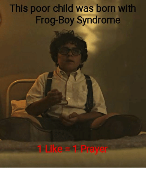 Memes, Prayer, and Boy: This poor child was born with  Frog-Boy Syndrome  1 LIke 1 Prayer