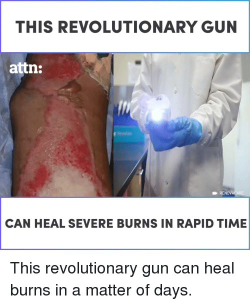 Memes, Time, and A Matter: THIS REVOLUTIONARY GUN  attn:  RENOVACARE  CAN HEAL SEVERE BURNS IN RAPID TIME This revolutionary gun can heal burns in a matter of days.