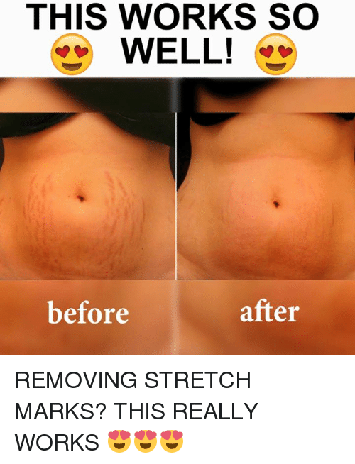 THIS WORKS SO WELL! * Before After REMOVING STRETCH MARKS