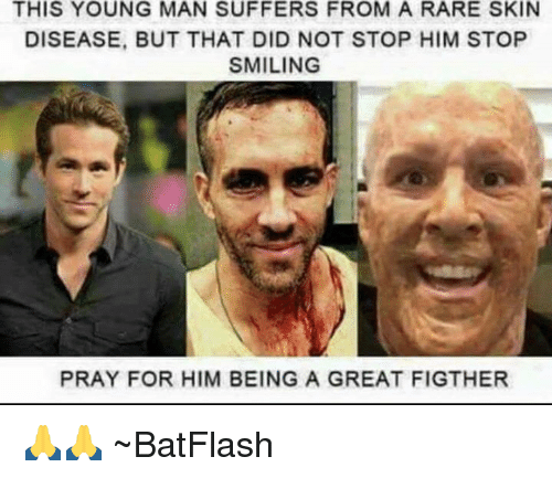 This young man suffers from a rare skin disease but that did not memes smile and smiles this young man suffers from a rare skin disease publicscrutiny Choice Image