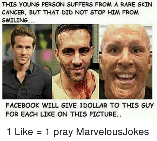 Facebook, Memes, and Cancer: THIS YOUNG PERSON SUFFERS FROM A RARE SKIN  CANCER, BUT THAT DID NOT STOP HIM FROM  SMILING.  FACEBOOK WILL GIVE 1DOLLAR TO THIS GUY  FOR EACH LIKE ON THIS PICTURE. 1 Like = 1 pray MarvelousJokes