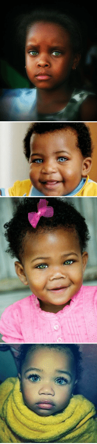<p>There are rare genetic anomalies that sometimes cause black babies to be born with blue or green eyes. It&rsquo;s mesmerizing 😍</p>: <p>There are rare genetic anomalies that sometimes cause black babies to be born with blue or green eyes. It&rsquo;s mesmerizing 😍</p>