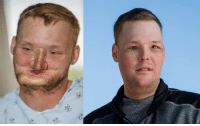 After attempting to take his own life, this man lost part of his face.  Now he's getting a new one – and the ability to speak, breathe and smell.: 必  Y; After attempting to take his own life, this man lost part of his face.  Now he's getting a new one – and the ability to speak, breathe and smell.