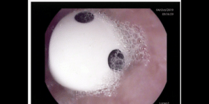 Got, Esophagus, and Oct: 04/Oct/2019  09:16:59  i-1anl Swallowed a die which got stuck in my esophagus