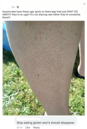 "Ugly, Gluten, and Reply: 1 hr  Anyone else have these ugly spots on there legs that just DONT GO  AWAY!!! they're so ugly!! It's not shaving rash either they're constantly  there!!!  Stop eating gluten and it should disappear.  Like  31 m  Reply Karen: ""Hair follicles? More like overconsumption of gluten!"""