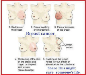 Life, Saw, and Scare: 1. Redness  2. Breast swelling 3. Pain or itchiness  the breast  or enlargement  of the breast  Breast cancer  ymph  nodes  4. Thickening of the skin  5. Swelling of the lymph  on the breast and  ridged or dimpled  skin texture  (peau d'orange)  nodes in your armpit or  above/below the collarbone  Share This might  save someone's life. xsorrowxlightx:  trumpetnista:  rarely-pure-never-simple:  thecornercoffeeshoppe:  hickshannary:  small-and-misunderstood:  Saw this somewhere else and felt the need to post it cause no one else ever really tells you this stuff  My mom never really noticed. She noticed when she was breast feeding my little brother and blood started coming out instead of milk.   My mom said she felt and saw a little lump in the shower. She was lucky enough she found it at stage 2  My mom had a mammogram. The radiologist thought the spots were just regular calcium deposits.  Turns out it was triple negative breast cancer that had spread to her lymph nods. Mastectomy, radiation and chemo saved her life. This could SAVE a life.  Signal BOOST and pass it on. I had a breast cancer scare before (luckily it was just scar tissue…) and information like this kept me calm and collected at the doc's.   As a cancer patient myself, who found my own cancer through a supposed LARPing injury last year, i know how scary it is and how important it is to catch it early. Please spread this around!