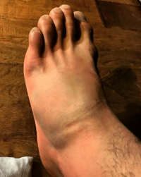 Dana white will say its just bruised no worries. Rafael Dos Anjos shows off his broken foot : Dana white will say its just bruised no worries. Rafael Dos Anjos shows off his broken foot