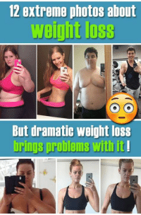 Read the full story here 👉 http://1jux.com/-ZV5k: 12 extreme photos about  weight loss  But dramatic weight loss  brin problems it! Read the full story here 👉 http://1jux.com/-ZV5k