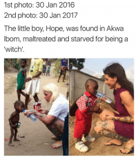 Memes, 🤖, and Witch: 1st photo: 30 Jan 2016  2nd photo: 30 Jan 2017  The little boy, Hope, was found in Akwa  bom, maltreated and starved for being a  witch' 😢😢