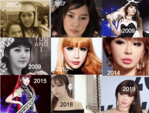 9 photos of the same person. Bom was botched in 2014. Now she is 40 years old and she looks good, like a doll. A lot of botox but she looks fine recently. She has severe PTSD, depression and body dysmorphia. Her boss called her ugly many times, it made her BDD worse. She has a very nice personality.: 2007  2000s  2009  AND  2009  2010  2014  2015  2019  2018 9 photos of the same person. Bom was botched in 2014. Now she is 40 years old and she looks good, like a doll. A lot of botox but she looks fine recently. She has severe PTSD, depression and body dysmorphia. Her boss called her ugly many times, it made her BDD worse. She has a very nice personality.